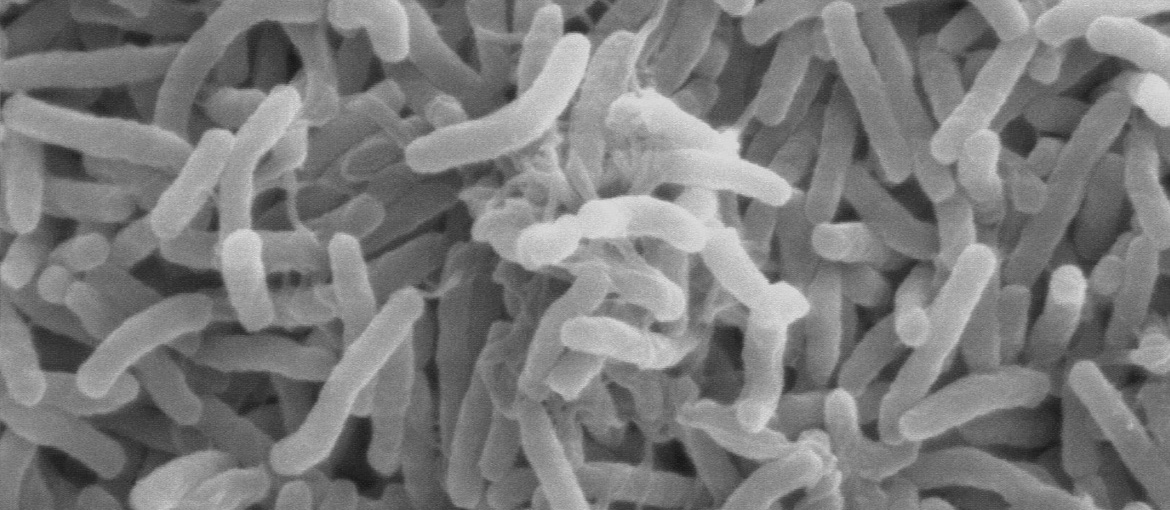Cholera bacteria viewed under a microscope