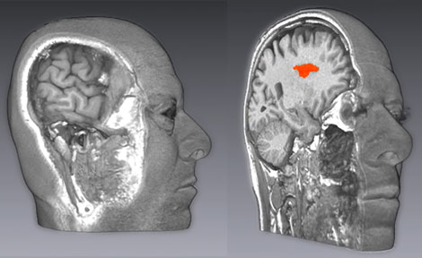 Three-dimensional brain scans in pscyhology lab